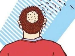 植发后多久可以看到效果呢?植发的效果可以永久维持吗?