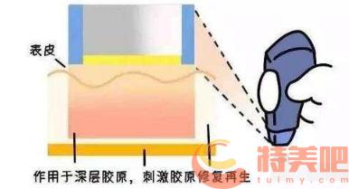 电波拉皮作用原理