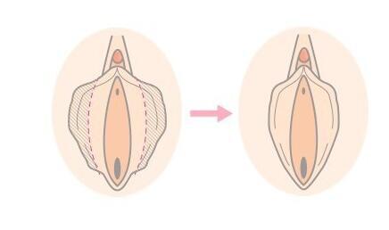 女性生殖外形矫正术