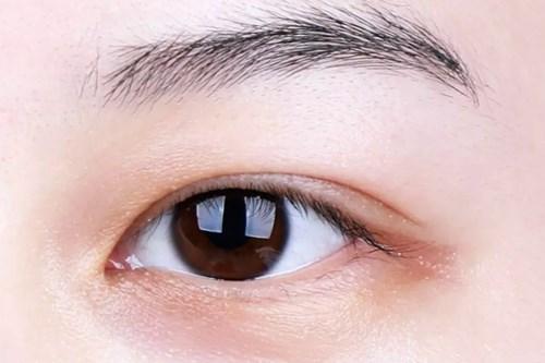 哪家医院割双眼皮比较好2.jpg