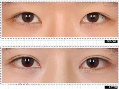 内双眼.jpg