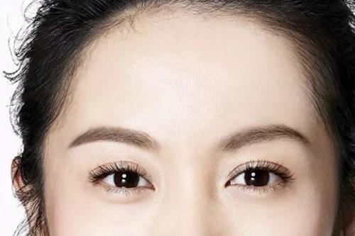 双眼皮修复的价格是多少2.jpg