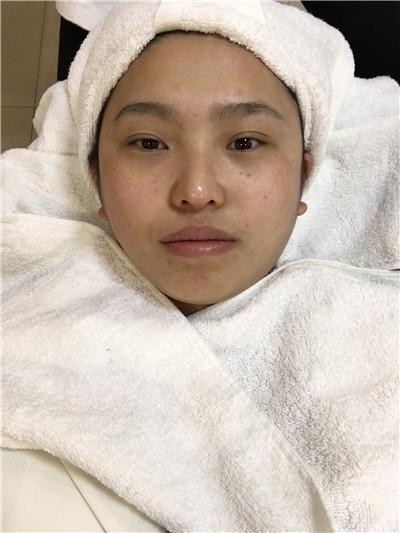 河南激光祛斑术后效果反馈