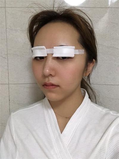 昆明切开双眼皮术后恢复情况分享
