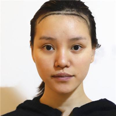南京小姐姐种植发际线术后效果分享