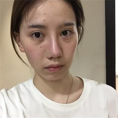 杭州膨体隆鼻术后案例分享