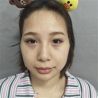 广东自体脂肪面部填充术后效果对比
