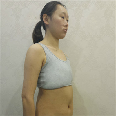 南京假体隆胸手术术后恢复情况分享