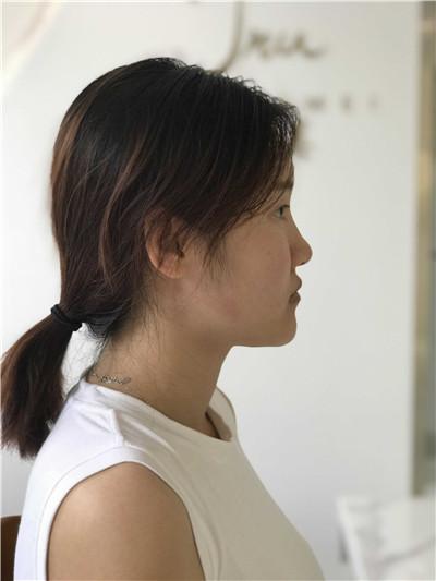 长春鼻综合手术术后效果反馈