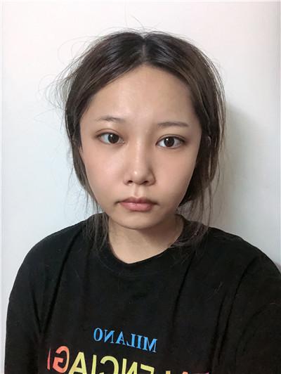 杭州面部线雕术后恢复情况反馈
