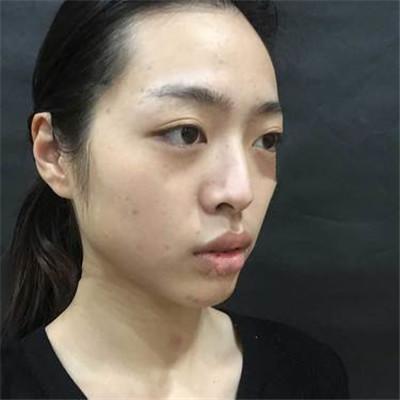 南京膨体隆鼻术后恢复效果分享
