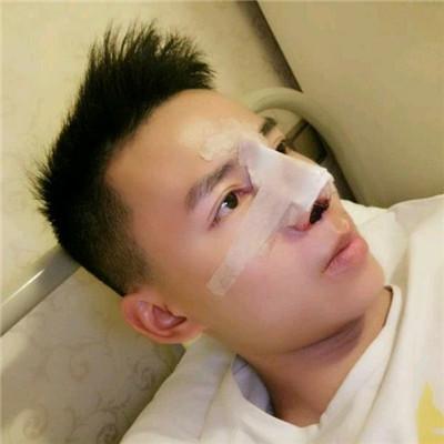 福州小哥哥鼻综合术后恢复效果分享