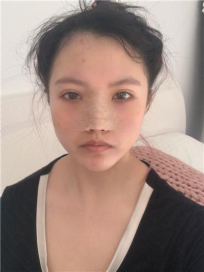 深圳耳软骨隆鼻术后恢复情况对比案例分享