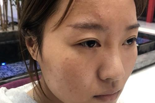 武汉肋软骨隆鼻手术效果分享
