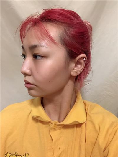 南京吸脂瘦脸术后恢复效果反馈
