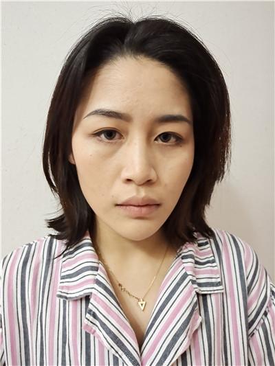 郑州耳软骨隆鼻术后恢复情况对比分享
