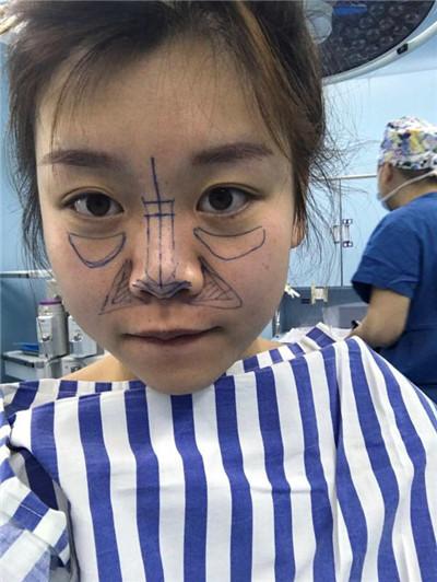成都肋软骨隆鼻术后恢复情况展示