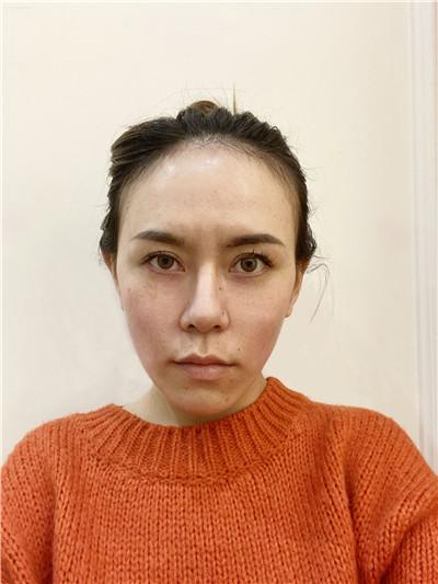 上海皮秒激光术后效果反馈,小姐姐的皮肤好好呀~