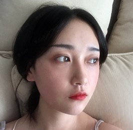 上海颧骨颧弓手术效果分享