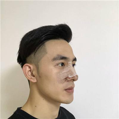 南京小哥哥鼻部修复术后效果反馈