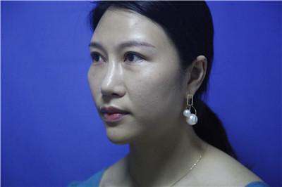 深圳鼻综合手术术后效果分享