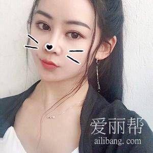 上海时光整形何晋龙颌面整形手术案例分享