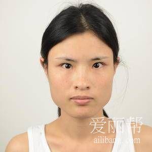 上海首尔丽格下颌角切除+颧骨降低手术案例
