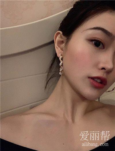 北京注射瘦肩针恢复效果对比