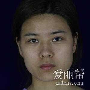 小仙女在四川友谊医院做颧骨内推恢复效果分享