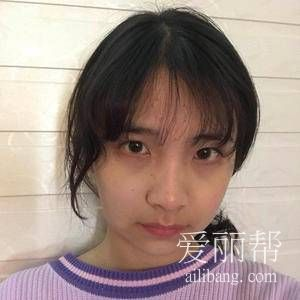小仙女在重庆时光整形医院做磨骨手术案例分享