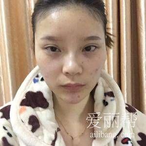四川华美紫馨祛痘去痘印案例分享