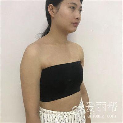 南京假体隆胸一个月恢复情况分享