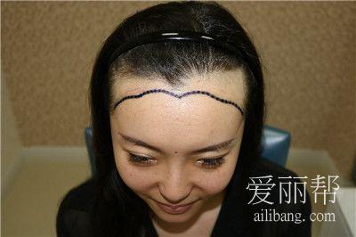 青岛小姐姐植发际线手术案例分享