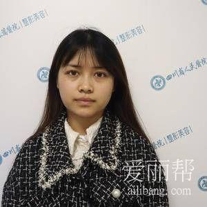 四川小姐姐下颌角截骨手术经历分享