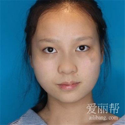 成都吸脂瘦脸术后恢复效果反馈