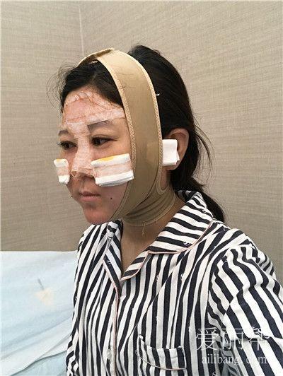 上海自体脂肪面部填充术后效果分享