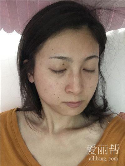 杭州注射瘦脸针案例反馈,小姐姐好漂亮呀~