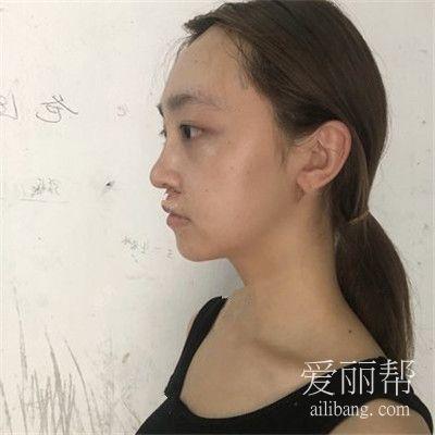 南通自体肋软骨隆鼻术后效果反馈