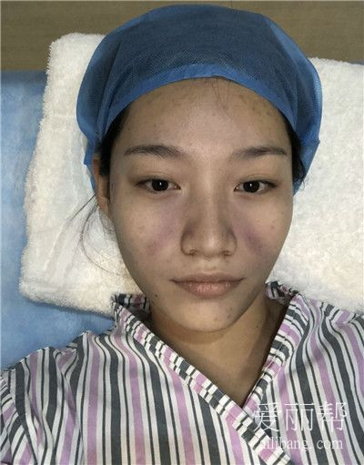 郑州自体脂肪面部填充术后效果分享