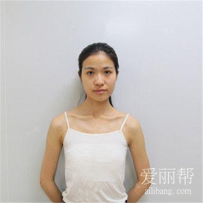 深圳假体隆胸术后效果反馈