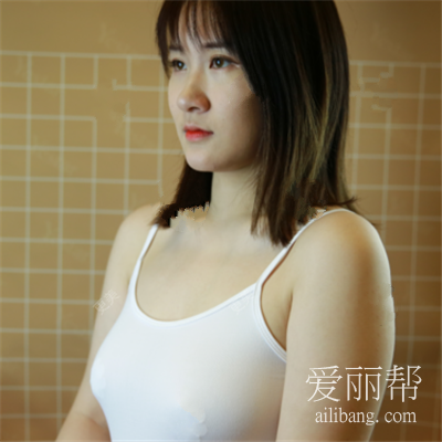 南京假体隆胸术后恢复效果分享