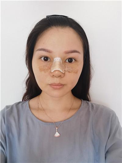 广州小姐姐鼻综合手术术后效果展示