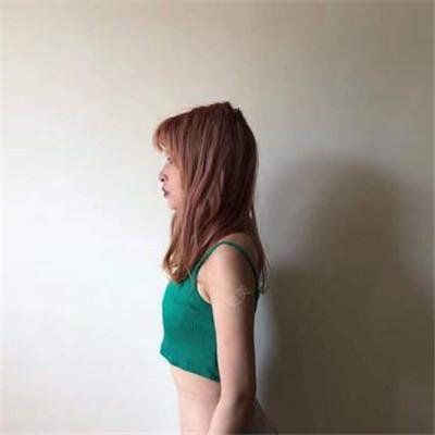 昆明模特小姐将假体隆胸术后效果反馈