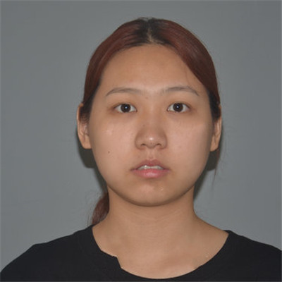 长沙小姐姐吸脂瘦脸术后恢复效果分享