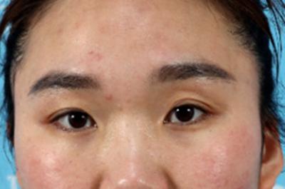 南昌双眼皮修复手术效果分享