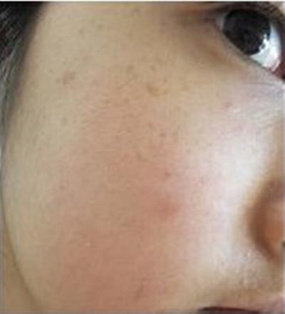北京水光针皮肤管理效果分享