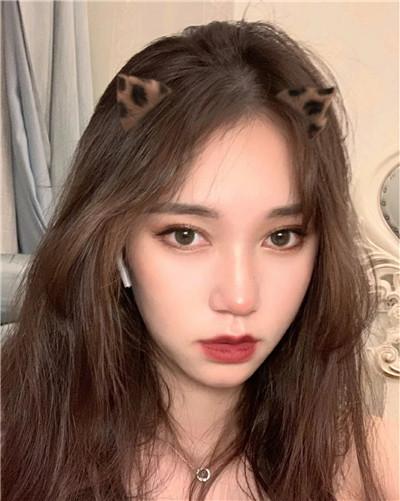杭州小仙女全切双眼皮手术术后效果分享