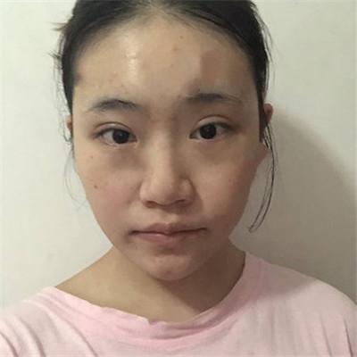 郑州鼻部综合手术术后效果展示