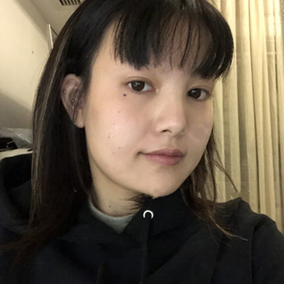 成都小姐姐吸脂瘦脸术后恢复情况反馈
