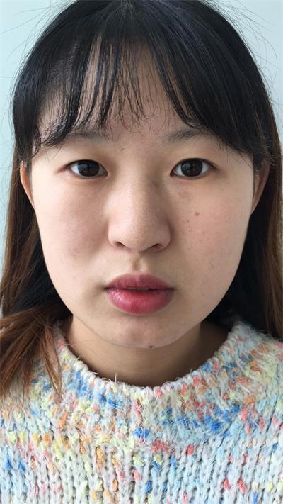 哈尔滨眼部综合手术术后效果反馈